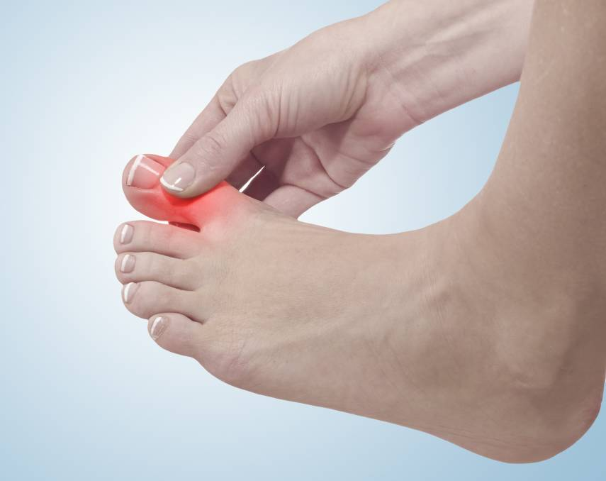 Gout is back with a bang. Thankfully there's modern medicine. Picture: Shutterstock
